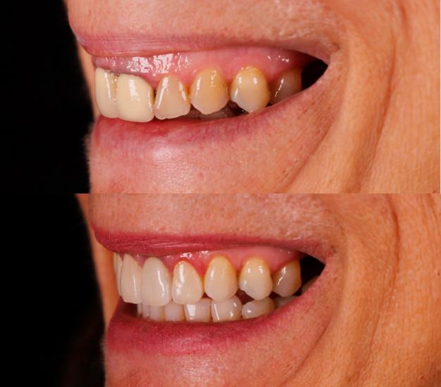 * Fotografía lateral del antes y después del tratamiento