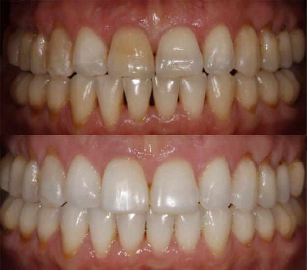 Fotografía frontal de la paciente antes y después del tratamiento