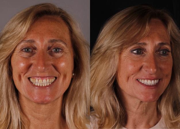 * Fotografía de la paciente antes y después del tratamiento multidisciplinar