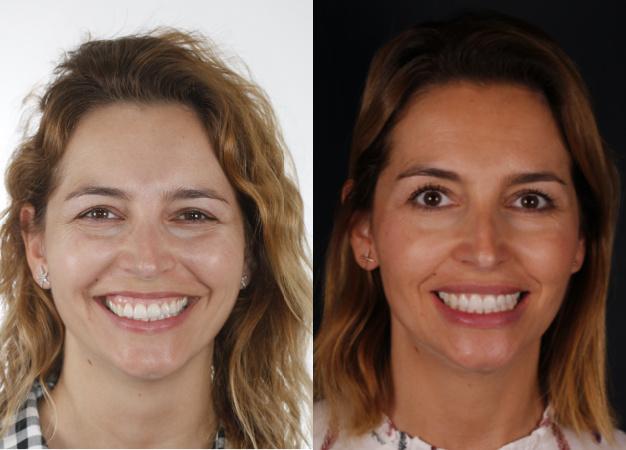 * Fotografía frontal de la paciente antes y después del tratamiento