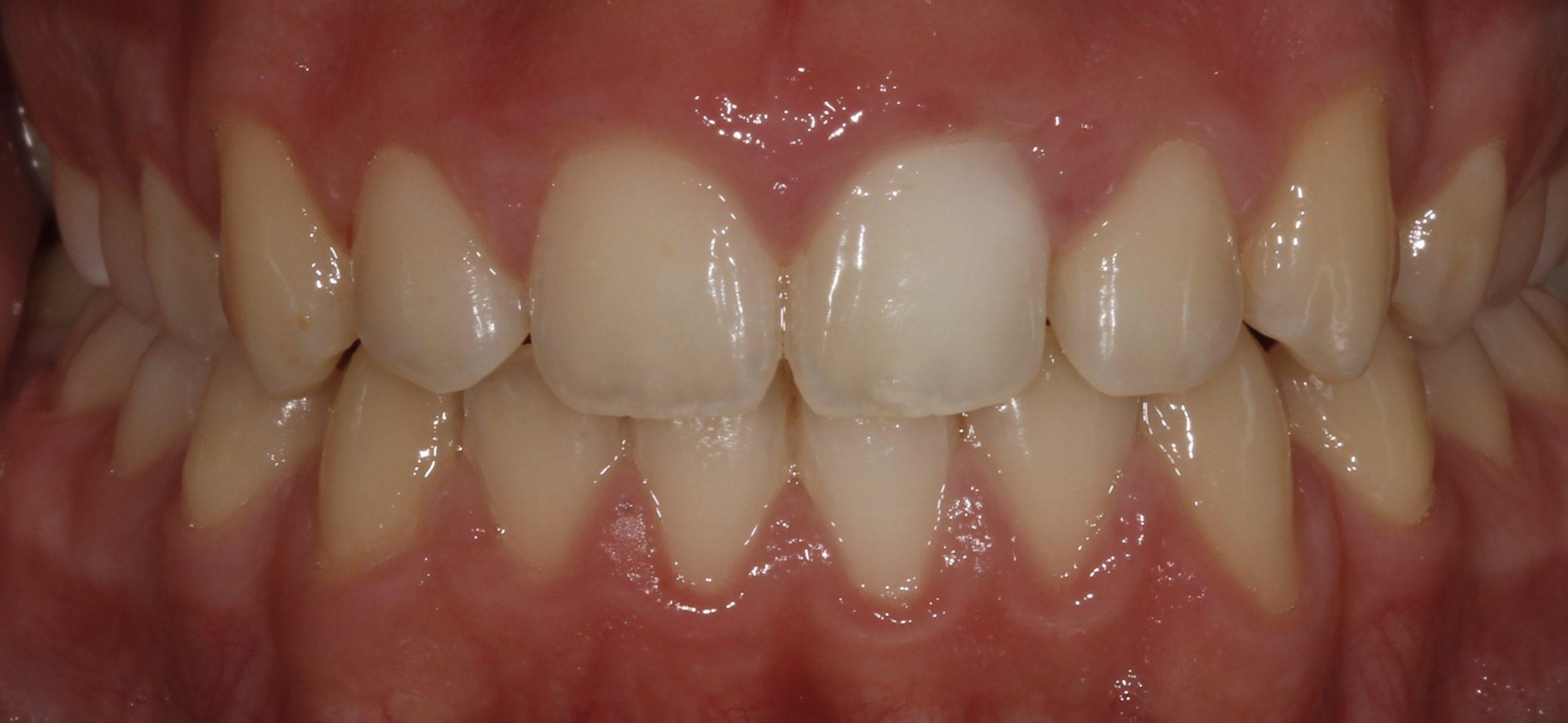 Blanqueamiento en paciente con traumatismo dental