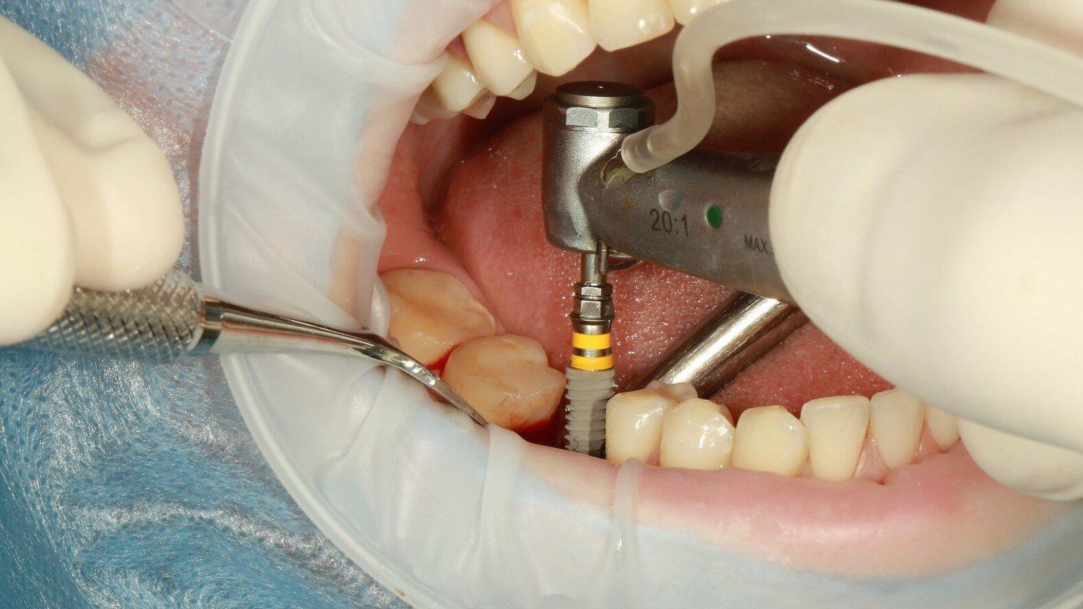 Implante o puentes dentales en clínica en valencia- Clínica Peydro