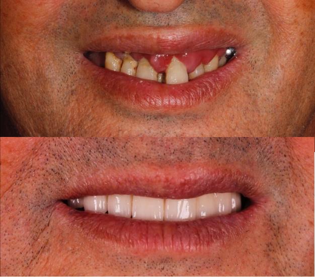 *Fotografía del antes y después del paciente tras su tratamiento de implantes