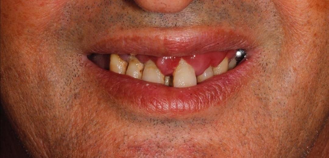 Antes de la colocación de implantes