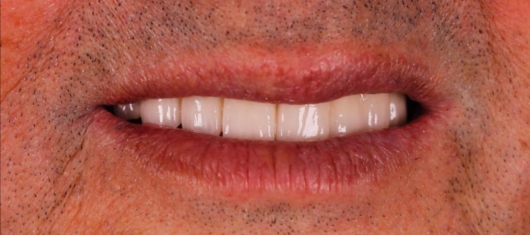 implantes clinica peydro
