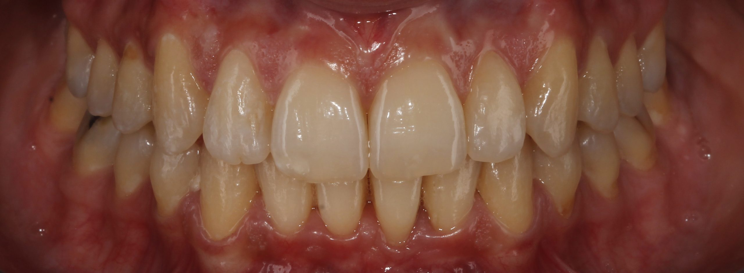 Apiñamiento dental solucionado con ortodoncia invisible