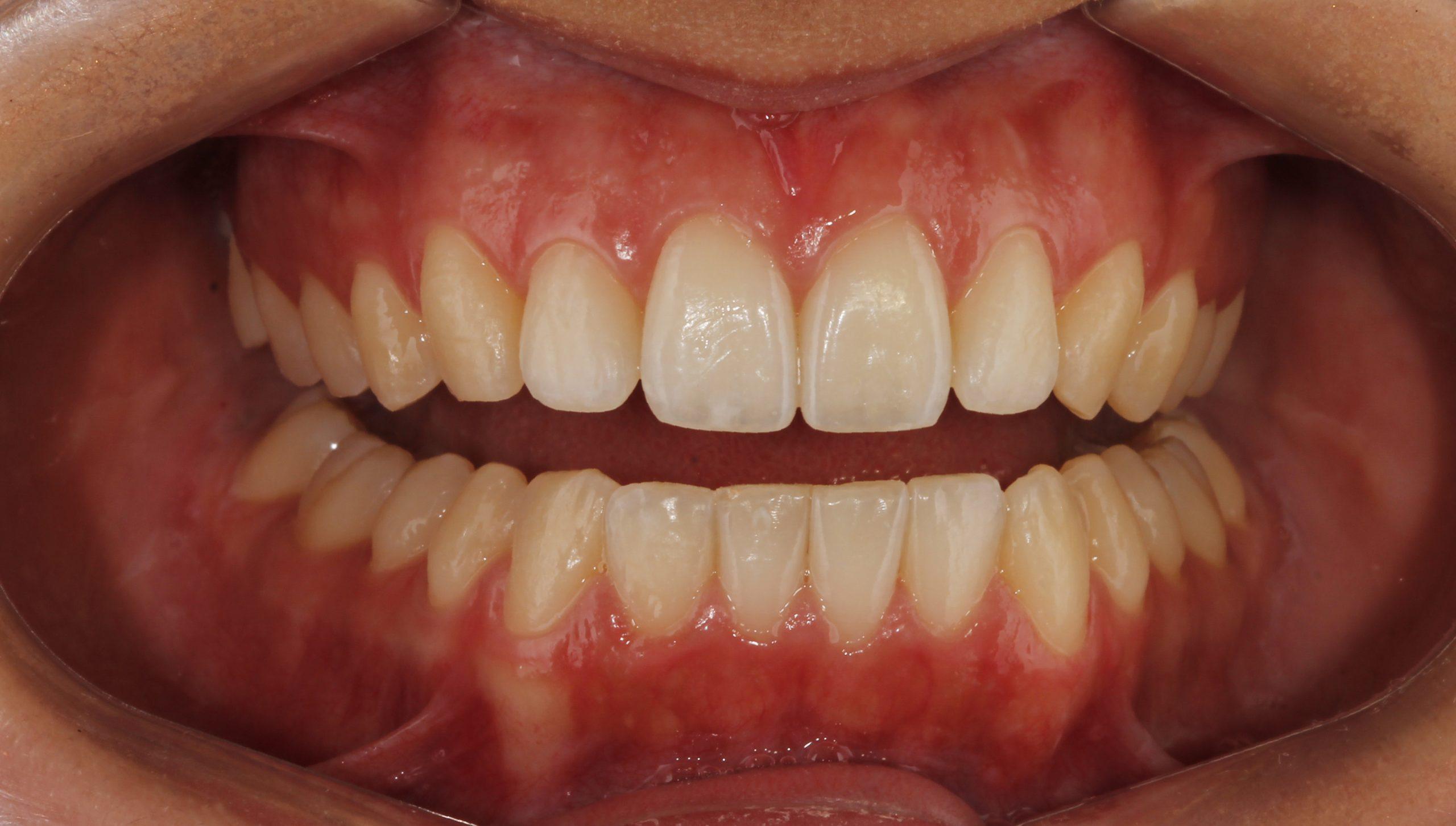 Después del tratamiento de ortodoncia invisible Invisalign