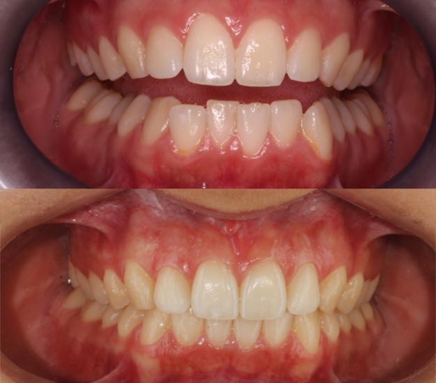 * Fotografía frontal de la paciente del antes y después del tratamiento