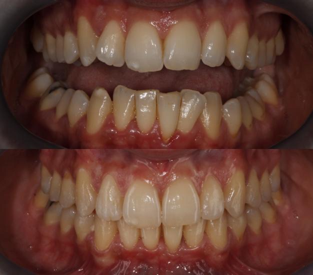 * Fotografía frontal de la paciente antes y después del tratamiento de ortodoncia