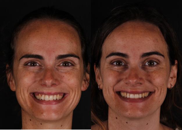 * Fotografía del antes y después de la paciente tras el tratamiento