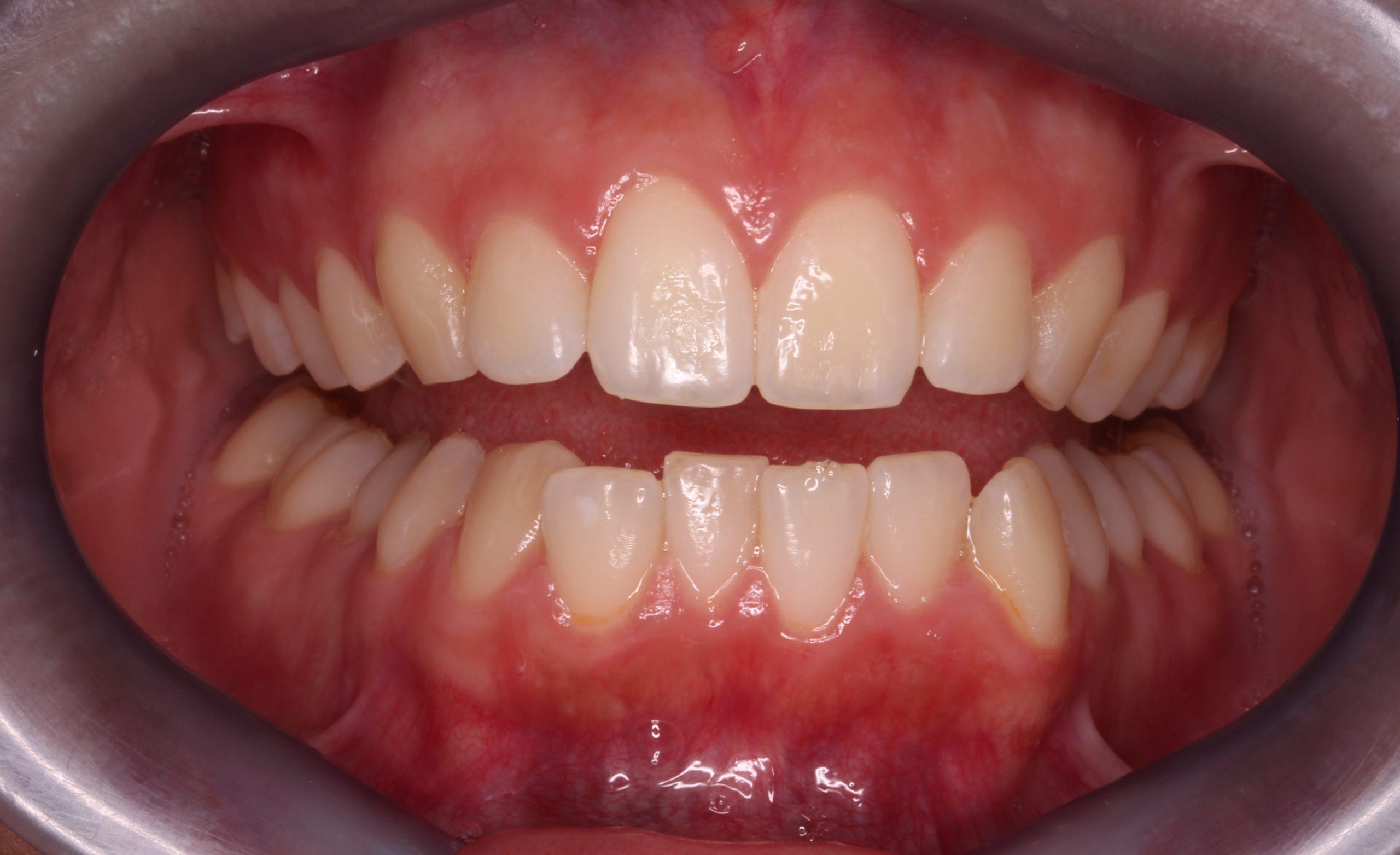 Antes del tratamiento de ortodoncia invisible
