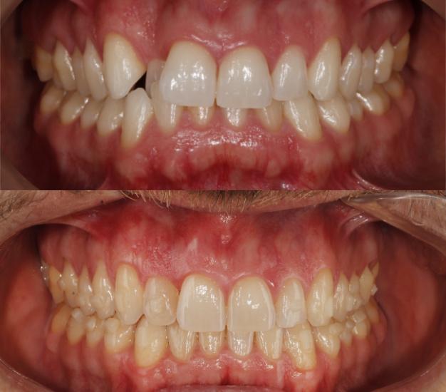 * Fotografía frontal del paciente antes y después del tratamiento