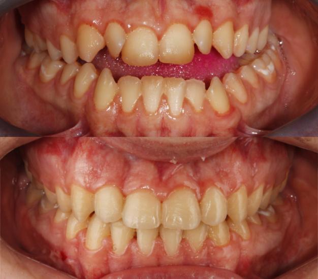 *Fotografía de los dientes del paciente antes y después del tratamiento