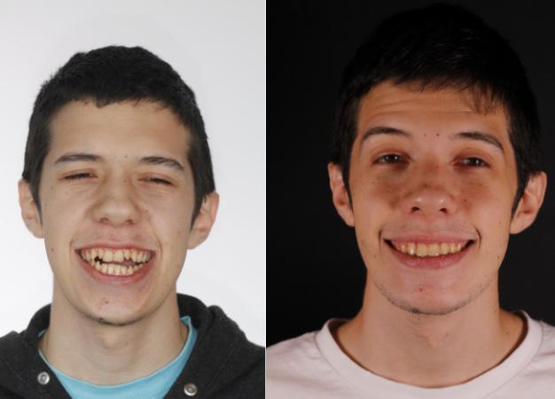 * Fotografía del antes y después del tratamiento