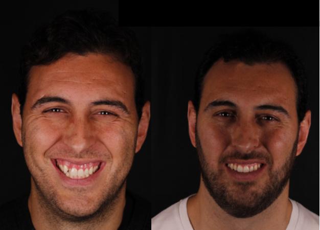 *Fotografía del antes y después del paciente tras el tratamiento