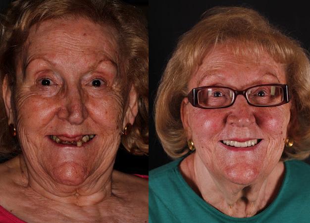 Antes y después de la paciente