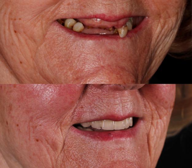 * Fotografía lateral del antes y después de la paciente
