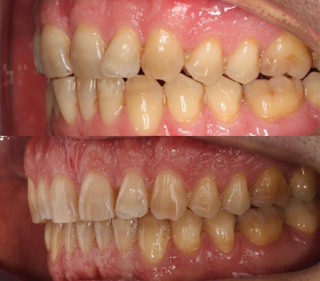 * Fotografía del lateral derecho del paciente antes y después del tratamiento