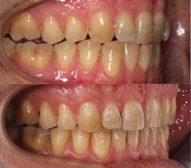 Lateral de la boca
