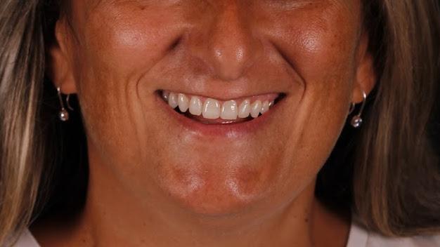 Ortodoncia y blanqueamiento