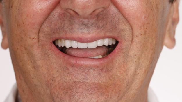 dientes-desgastados-caso-multidisciplinar