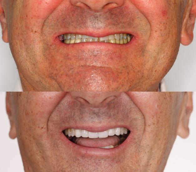 dientes desgastados antes y después