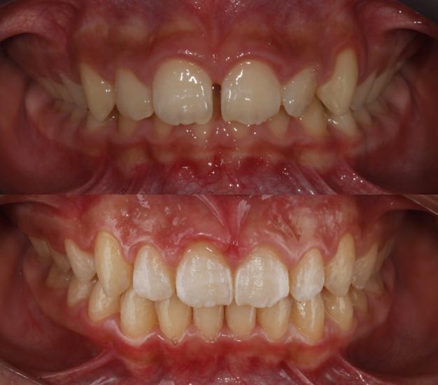 Ortodoncia ivnisible antes y después