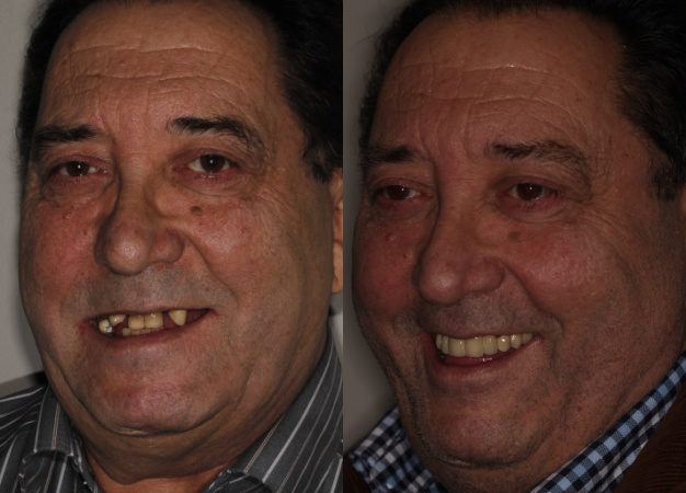 Rehabitación con implantes dentales