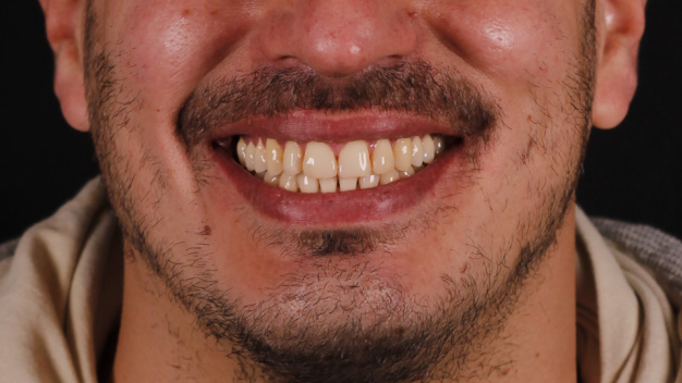 Gingivoplastia y blanqueamiento dental