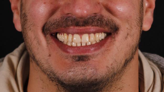 Ortodoncia y carillas en Clínica Peydro